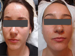 acne treatment Southend Essex
