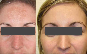 Microdermabrasion facial Southend