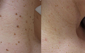 Skin Tag Removal Southend