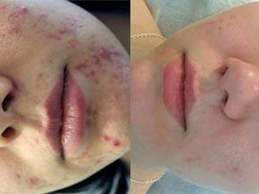 acne treatment Southend Essex