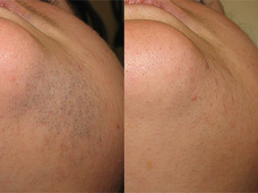 IPL laser hair removal Southend