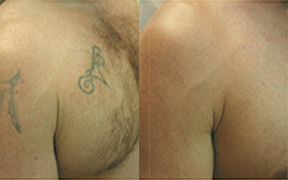 Laser Tattoo Removal Southend