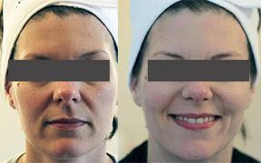 Microdermabrasion facial Southend